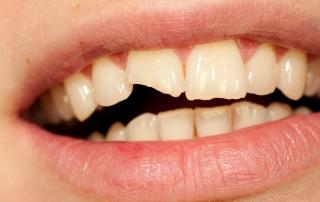 Ein abgebrochener Zahn