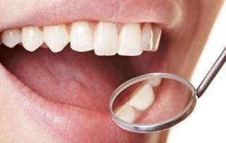 Zahnarzt schaut mit einem Spiegel in den Mund