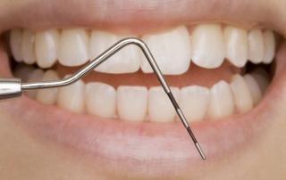 Ein Werkzeug von einem Zahnarzt