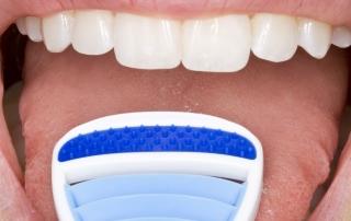 Die Zunge säubern mit einer Zungebürste